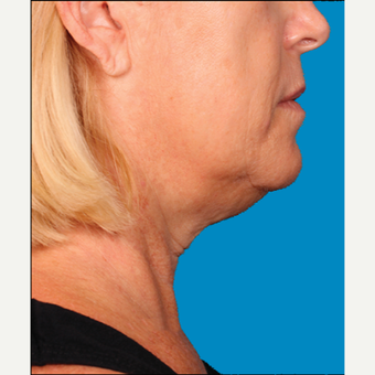 "55-64 year old woman treated with Kybella for corruption of sub mental fullness /""double chin"" before 2335009"