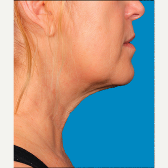 "55-64 year old woman treated with Kybella for corruption of sub mental fullness /""double chin"" after 2335009"