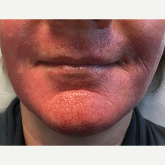 55-64 year old woman treated with Microneedling for perioral wrinkles and lip lines
