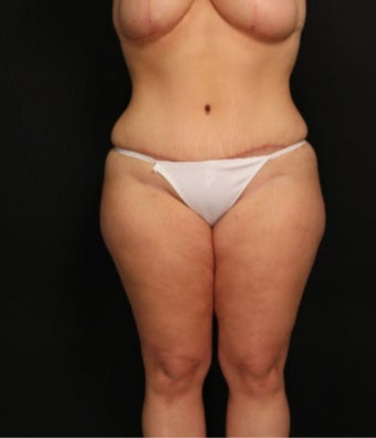 32 year old female with abdominoplasty (tummy tuck) and liposuction of the hips after 3575998