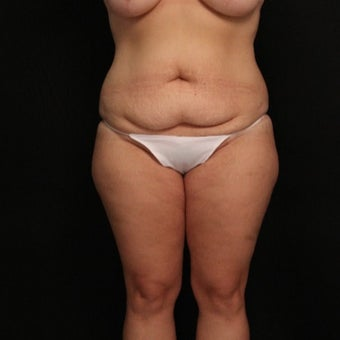 32 year old female with abdominoplasty (tummy tuck) and liposuction of the hips before 3575998