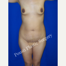 25-34 year old woman treated with Mommy Makeover before 3727518