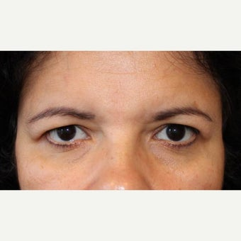 45-54 year old woman treated with Forehead Lift before 2062662