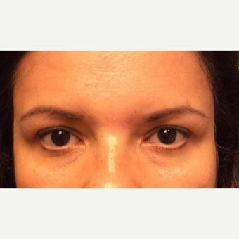 45-54 year old woman treated with Forehead Lift after 2062662