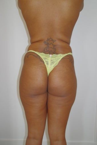 35 year old woman treated with Brazilian Butt Lift before 2308155