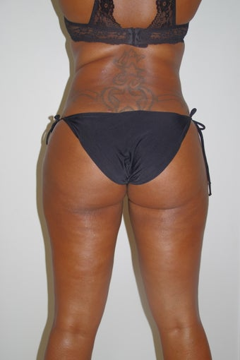 35 year old woman treated with Brazilian Butt Lift after 2308155