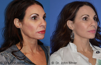 Laser Skin Resurfacing before 1156585