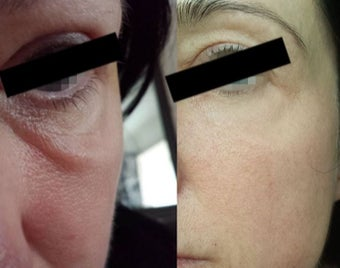 35-44 year old woman treated with Laser Treatment before 2308256