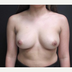 18-24 year old woman treated with Breast Augmentation before 2988075
