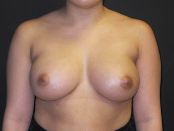 18-24 year old woman treated with Breast Augmentation after 2988075
