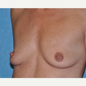 45-54 year old woman treated with Breast Augmentation before 3732868