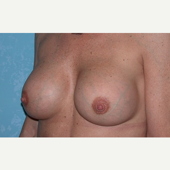 45-54 year old woman treated with Breast Augmentation after 3732868