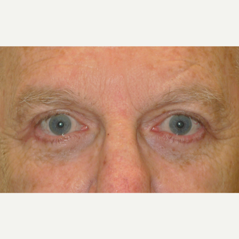 55-64 year old man treated with Eye Bags Treatment after 2721687