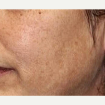 45-54 year old woman treated with Skin Tightening