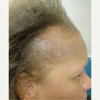 45-54 year old woman treated with PRP for Hair Loss before 2554158