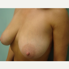 35-44 year old man treated with Breast Lift before 3168239