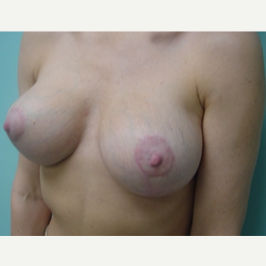 35-44 year old man treated with Breast Lift after 3168239