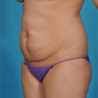 25 year old woman treated with Tummy Tuck 1792955