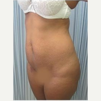 25-34 year old woman treated with Tummy Tuck with 1 month post-op before 2048755