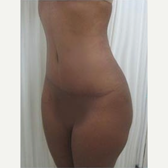 25-34 year old woman treated with Tummy Tuck with 1 month post-op after 2048755