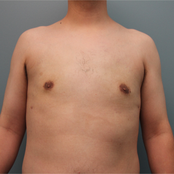 Male Breast Reduction Performed Using Liposuction after 3467007