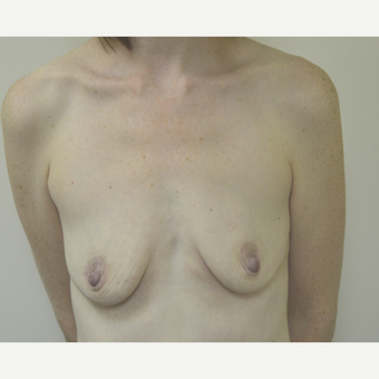 35-44 year old woman treated with Breast Lift with Implants before 3181977