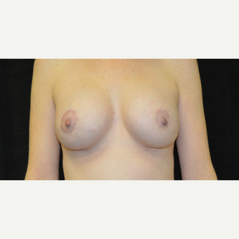35-44 year old woman treated with Breast Lift with Implants after 3181977