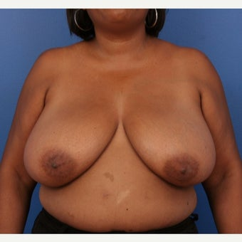 45-54 year old woman treated with Breast Reduction before 1778584