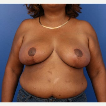 45-54 year old woman treated with Breast Reduction after 1778584