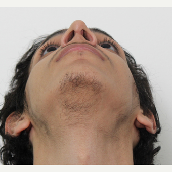 18-24 year old man treated with Rhinoplasty after 3365191