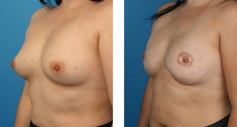 28 Year Old Woman, Cassileth One-Stage Breast Reconstruction 1039922