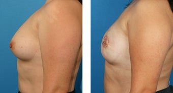 28 Year Old Woman, Cassileth One-Stage Breast Reconstruction after 1039922