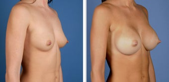 Breast Augmentation, Saline 360cc Moderate Profile after 226912