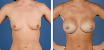Breast Augmentation, Saline 360cc Moderate Profile before 226912