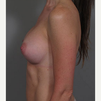 35-44 year old woman treated with Breast Augmentation after 3282320