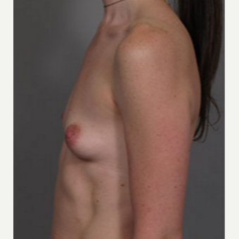 35-44 year old woman treated with Breast Augmentation before 3282320