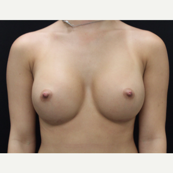 18-24 year old woman treated with Breast Augmentation after 3665038