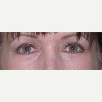 45-54 year old woman treated with Eye Bags Treatment after 2210870