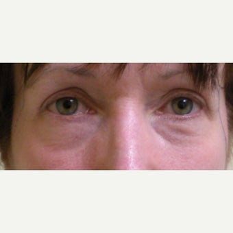 45-54 year old woman treated with Eye Bags Treatment before 2210870