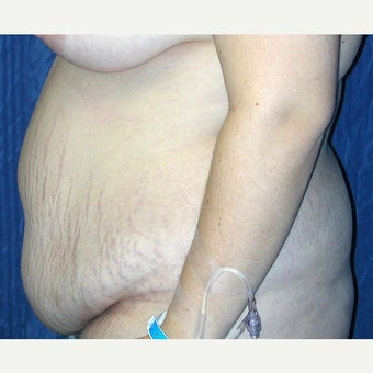25-34 year old woman treated with Tummy Tuck before 1941780