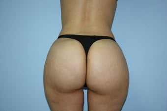 38 yo - liposculpture and buttock fat grafting after 1105227