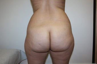 38 yo - liposculpture and buttock fat grafting before 1105227
