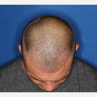 35-44 year old man treated with ARTAS Robotic Hair Transplant by Dr. Ken Williams after 3725169