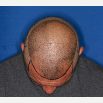 35-44 year old man treated with ARTAS Robotic Hair Transplant by Dr. Ken Williams before 3725169
