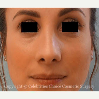 25-34 year old woman treated with Rhinoplasty after 3853499