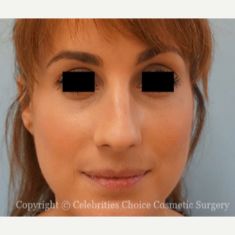 25-34 year old woman treated with Rhinoplasty before 3853499