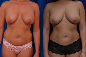 Implant removal and fat grafting before 131959