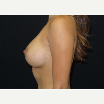 25-34 year old woman treated with Breast Augmentation after 3182103