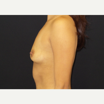 25-34 year old woman treated with Breast Augmentation before 3182103