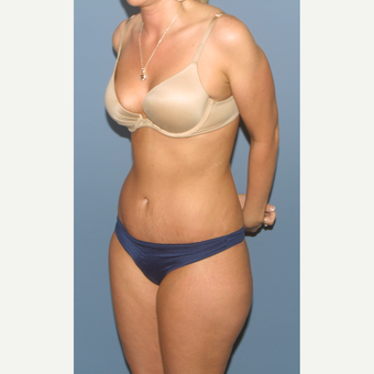 25-34 year old woman treated with Tummy Tuck after 3563563